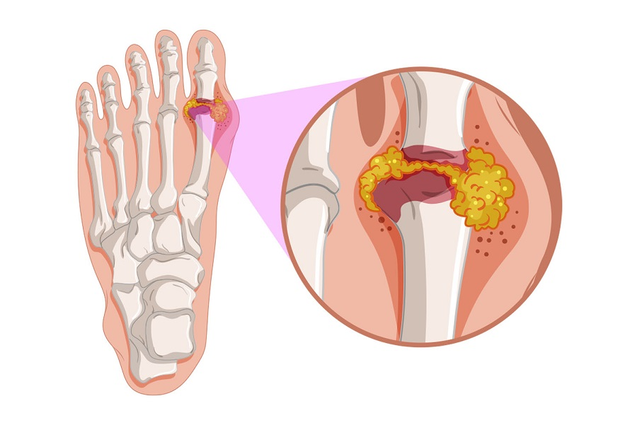 Preventing Gout